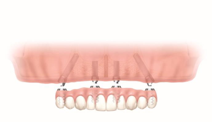 Diagram showing All-on-4 teeth and the implants that support them
