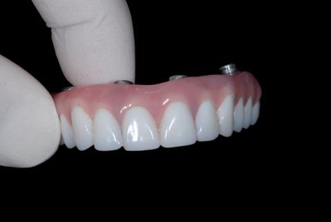 Gloved hand holding an upper set of All-on-4 teeth