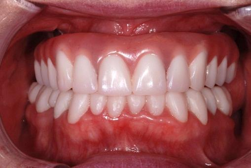 Actual image of beautiful All-on-4 teeth placed in a patient's mouth