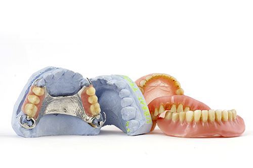 A traditional denture is an affordable solution to tooth loss, but not as good as a dental implant solution.