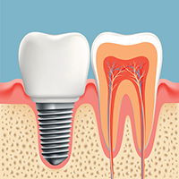 One of the reasons dental implants have such a high success rate is due to the use of biocompatible materials.