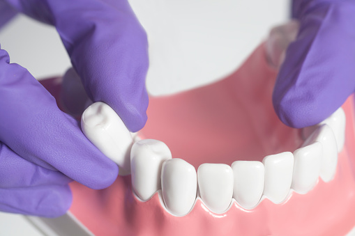 How to Care for Your Gums After an Extracted Tooth Heals