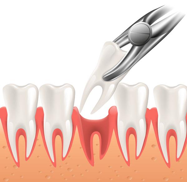 Tooth Extraction Phoenix Az David R Moyer Dds