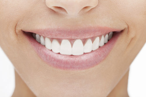 Porcelain Veneers at David R. Moyer Cosmetic & Family Dentistry