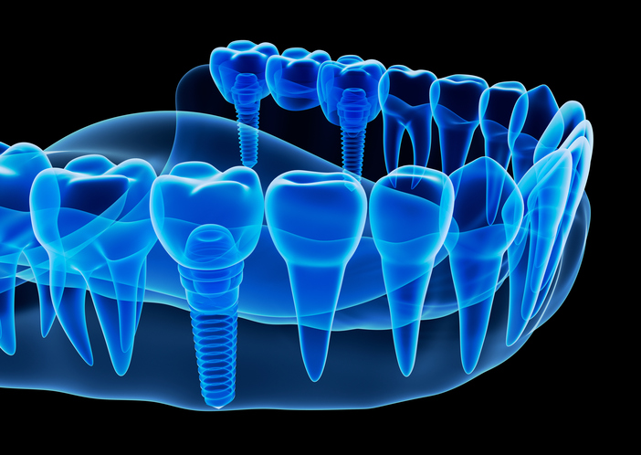 Single Tooth Implant illustration at David R. Moyer Cosmetic & Family Dentistry